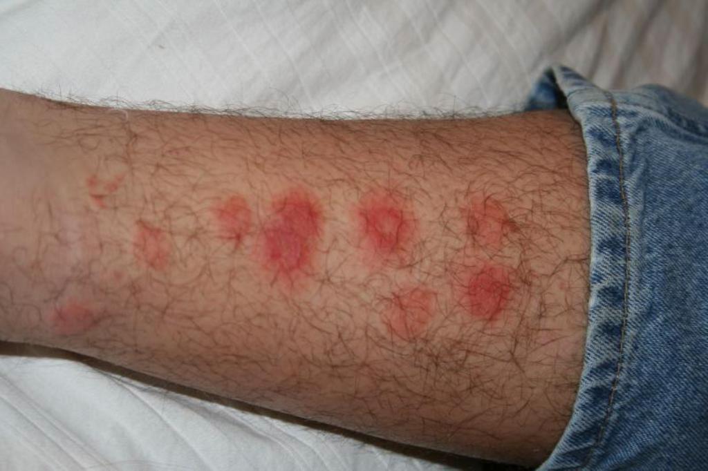 укусы клопов на ноге