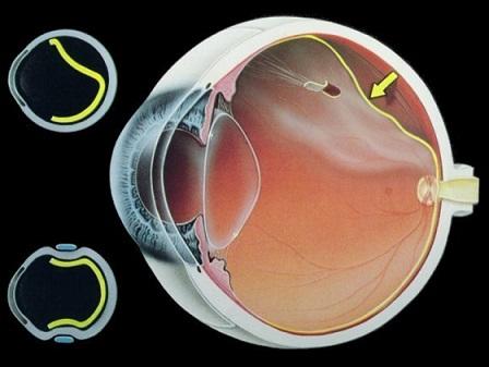 Отслаивание сетчатки глаза