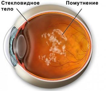 Помутнение в стекловидном теле глаза
